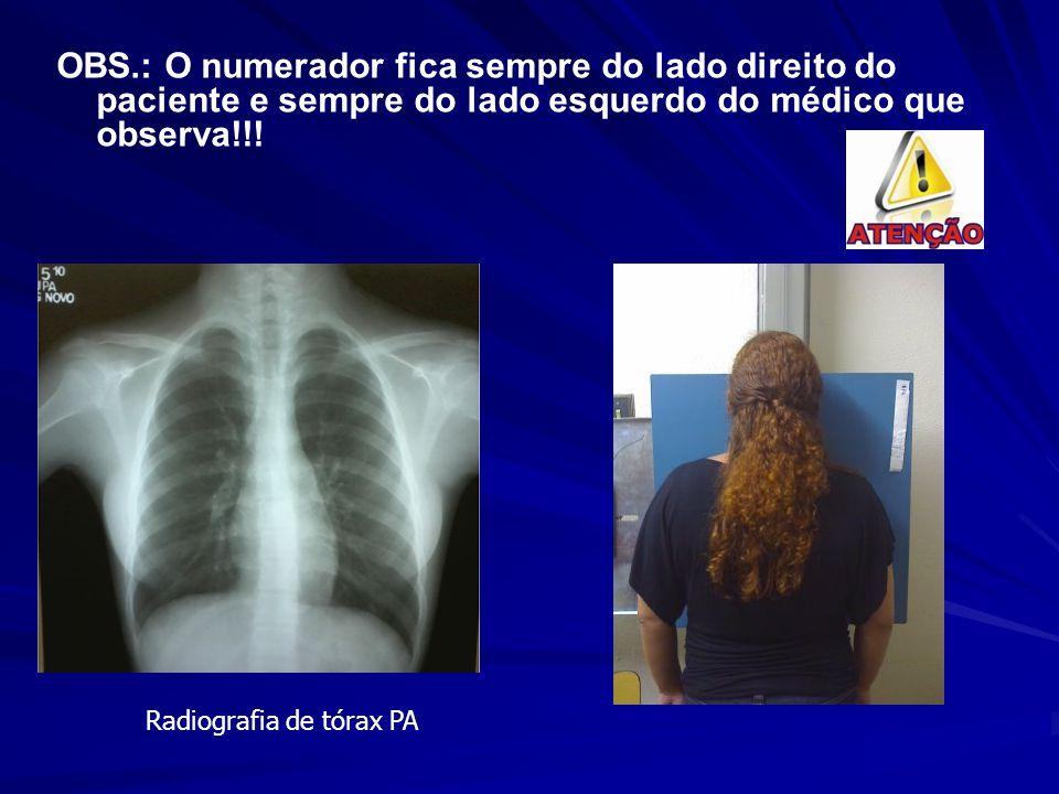 OBS.: O numerador fica sempre do lado direito do paciente e sempre do lado esquerdo do médico que observa!!! Radiografia de tórax PA