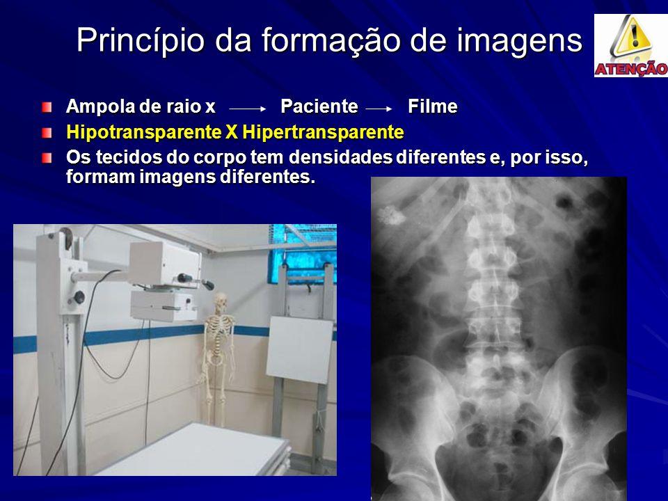 Princípio da formação de imagens Ampola de raio x Paciente Filme Hipotransparente X Hipertransparente Os tecidos do corpo tem densidades diferentes e, por isso, formam imagens diferentes.