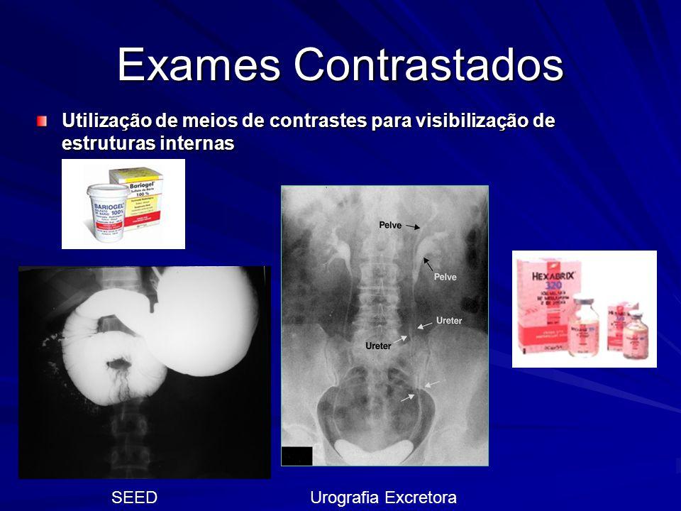Exames Contrastados Utilização de meios de contrastes para visibilização de estruturas internas SEEDUrografia Excretora