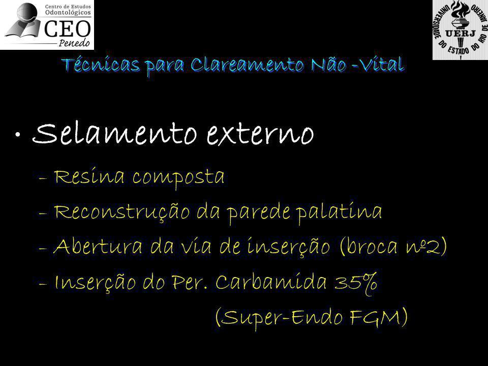 • Selamento externo – Resina composta – Reconstrução da parede palatina – Abertura da via de inserção (broca nº2) – Inserção do Per. Carbamida 35% (Su