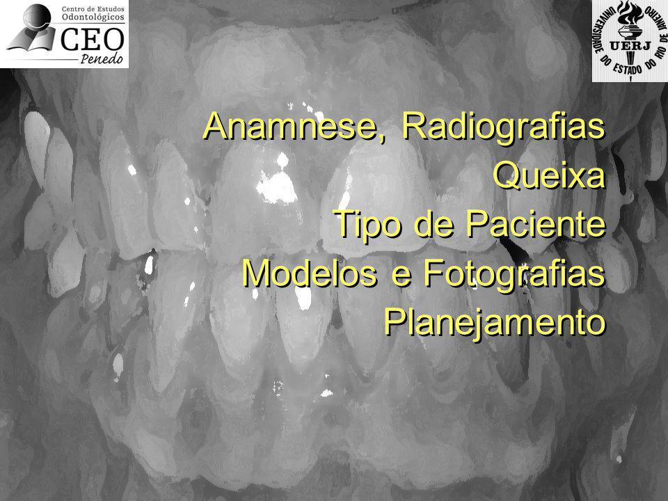 Anamnese, Radiografias Queixa Tipo de Paciente Modelos e Fotografias Planejamento Anamnese, Radiografias Queixa Tipo de Paciente Modelos e Fotografias
