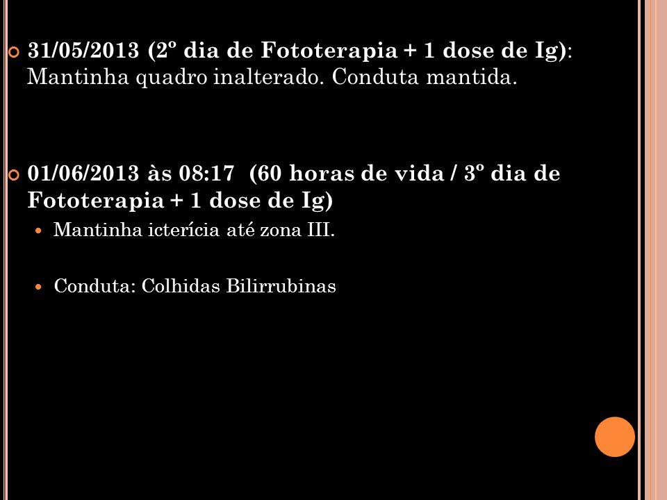 31/05/2013 (2º dia de Fototerapia + 1 dose de Ig) : Mantinha quadro inalterado. Conduta mantida. 01/06/2013 às 08:17 (60 horas de vida / 3º dia de Fot