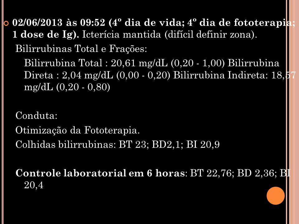 02/06/2013 às 09:52 (4º dia de vida; 4º dia de fototerapia; 1 dose de Ig). Icterícia mantida (difícil definir zona). Bilirrubinas Total e Frações: Bil