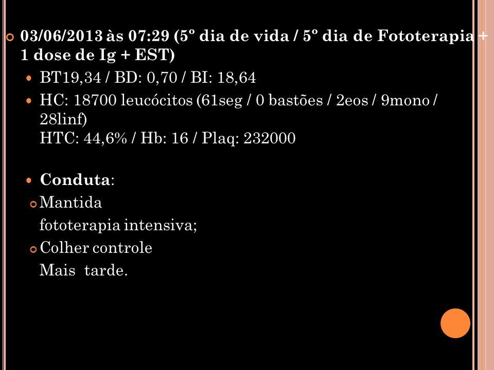 03/06/2013 às 07:29 (5º dia de vida / 5º dia de Fototerapia + 1 dose de Ig + EST)  BT19,34 / BD: 0,70 / BI: 18,64  HC: 18700 leucócitos (61seg / 0 b