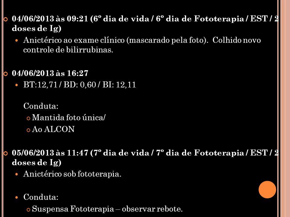 04/06/2013 às 09:21 (6º dia de vida / 6º dia de Fototerapia / EST / 2 doses de Ig)  Anictérico ao exame clínico (mascarado pela foto). Colhido novo c