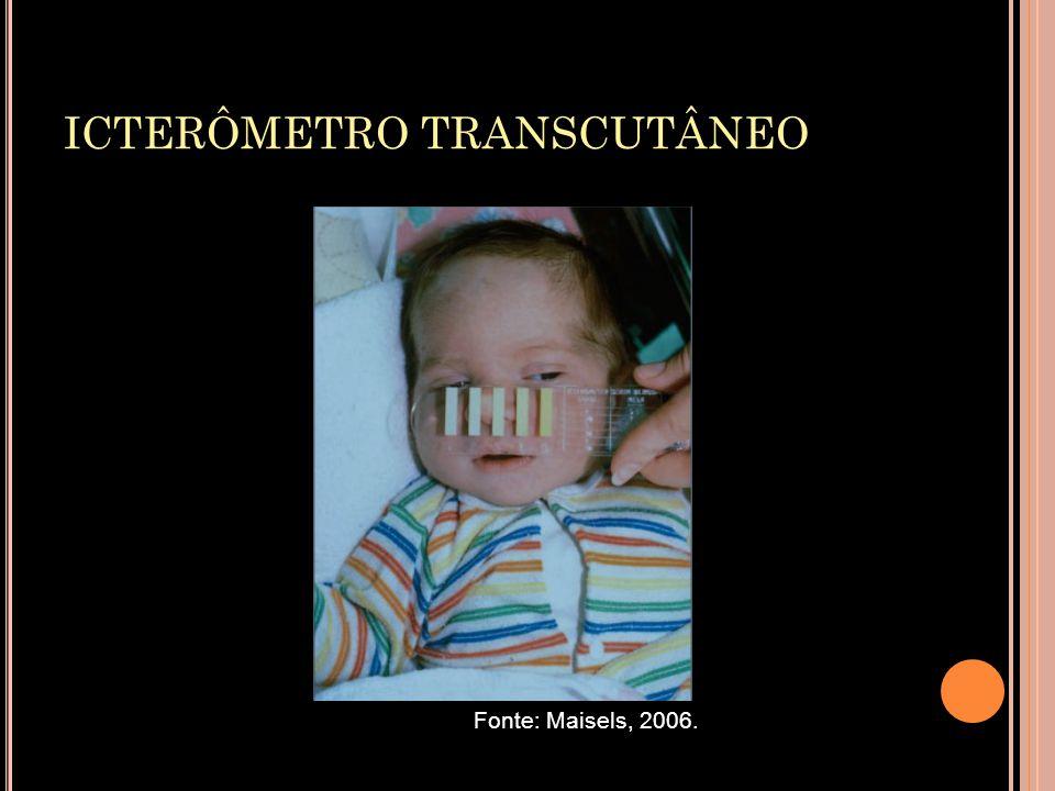ICTERÔMETRO TRANSCUTÂNEO Fonte: Maisels, 2006.