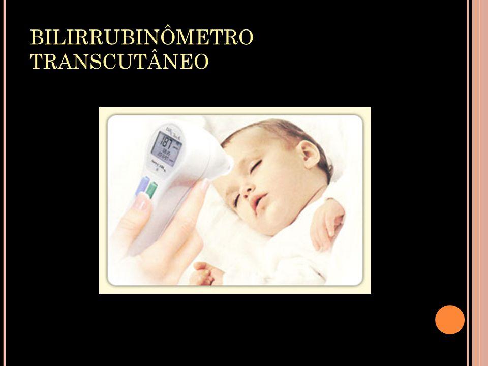 BILIRRUBINÔMETRO TRANSCUTÂNEO