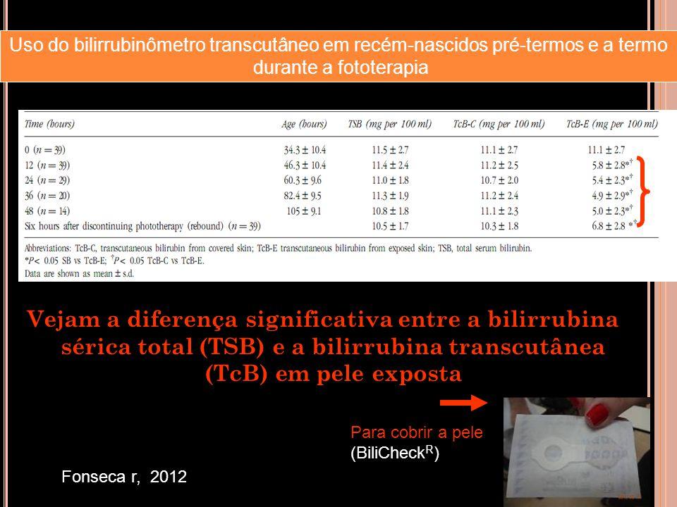 Vejam a diferença significativa entre a bilirrubina sérica total (TSB) e a bilirrubina transcutânea (TcB) em pele exposta Fonseca r, 2012 Uso do bilir