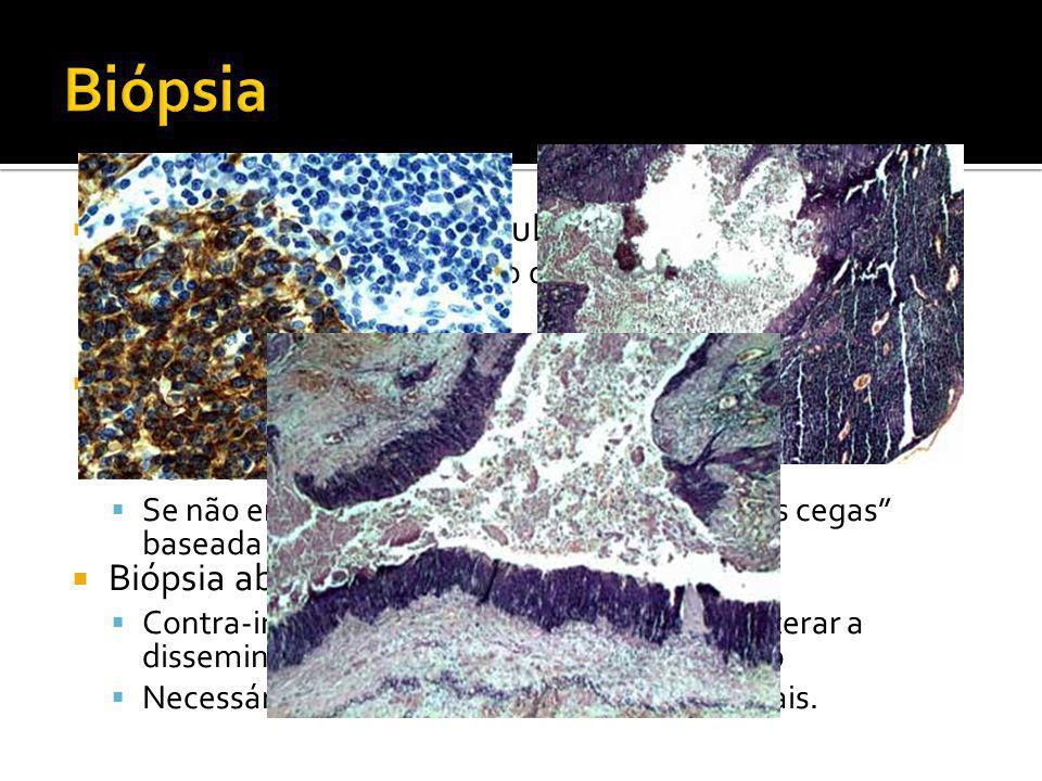  Punção Aspirativa por Agulha Fina (PAAF)  Importante no diagnóstico diferencial dos nódulos da tireóide  Confirmação de metástase.  Endoscopia e
