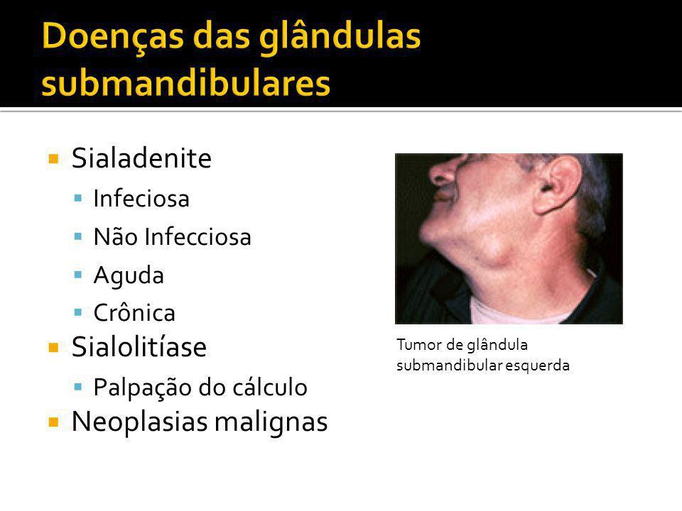  Sialadenite  Infeciosa  Não Infecciosa  Aguda  Crônica  Sialolitíase  Palpação do cálculo  Neoplasias malignas Tumor de glândula submandibula
