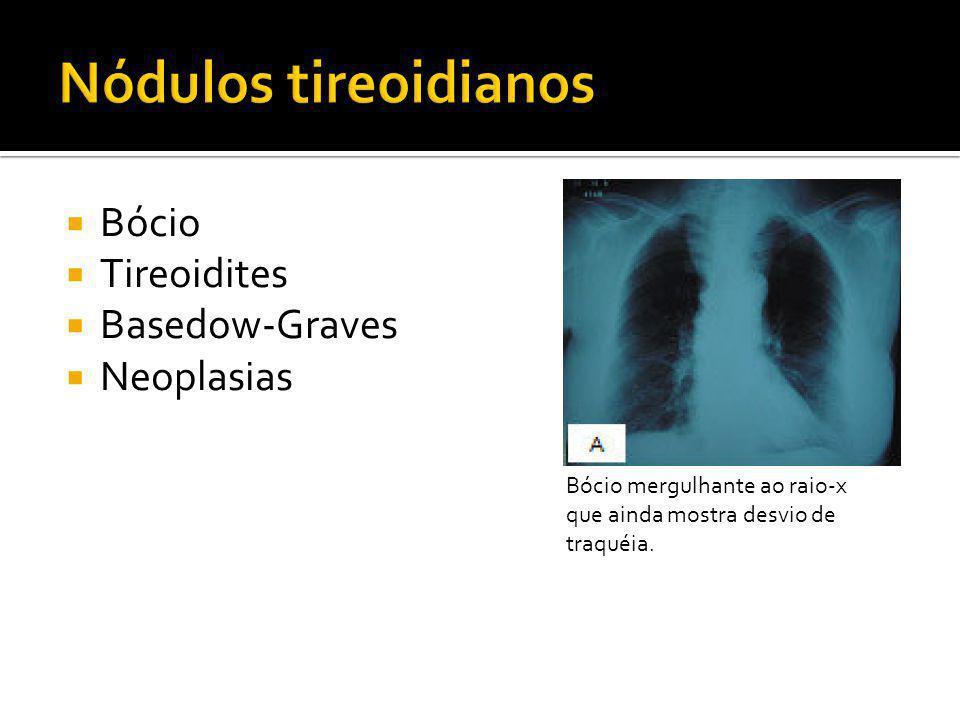  Bócio  Tireoidites  Basedow-Graves  Neoplasias Bócio mergulhante ao raio-x que ainda mostra desvio de traquéia.