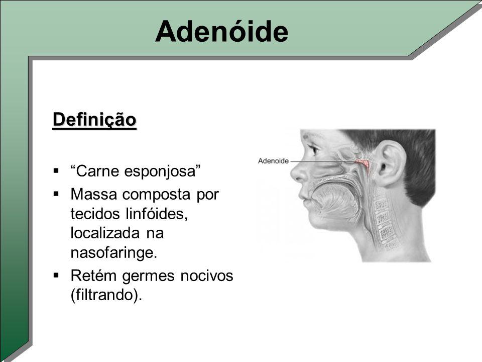 Adenóide Definição  Carne esponjosa  Massa composta por tecidos linfóides, localizada na nasofaringe.