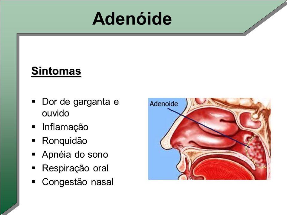 Adenóide Sintomas  Dor de garganta e ouvido  Inflamação  Ronquidão  Apnéia do sono  Respiração oral  Congestão nasal