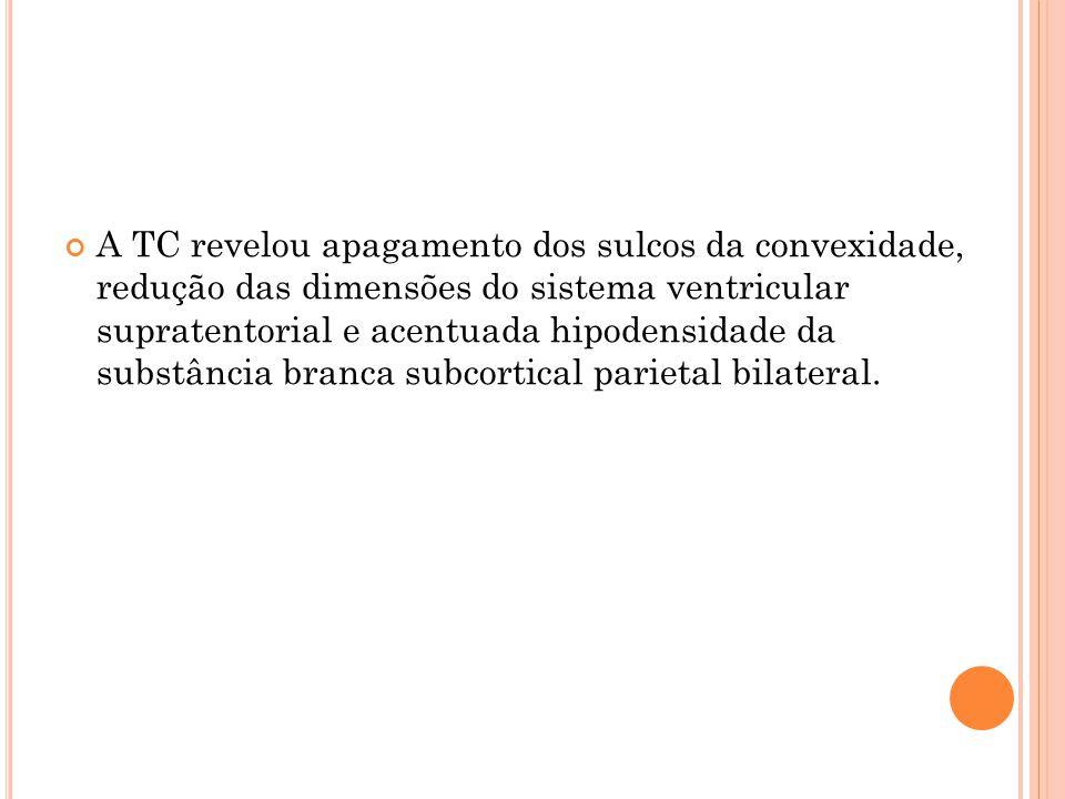 A TC revelou apagamento dos sulcos da convexidade, redução das dimensões do sistema ventricular supratentorial e acentuada hipodensidade da substância