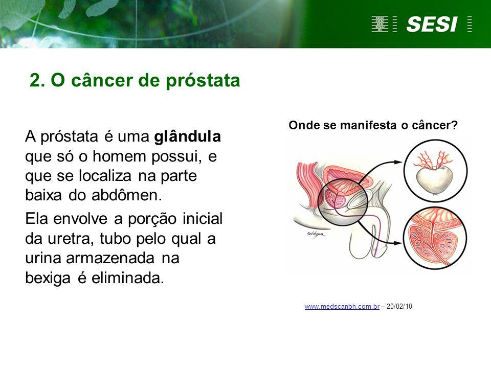 2. O câncer de próstata A próstata é uma glândula que só o homem possui, e que se localiza na parte baixa do abdômen. Ela envolve a porção inicial da