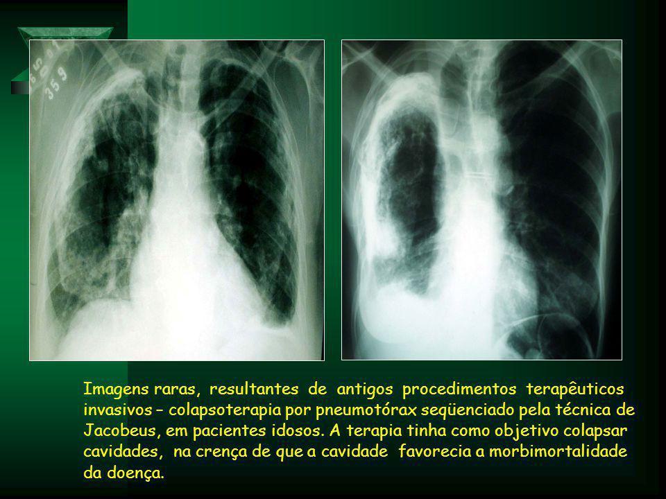 Imagens raras, resultantes de antigos procedimentos terapêuticos invasivos – colapsoterapia por pneumotórax seqüenciado pela técnica de Jacobeus, em pacientes idosos.