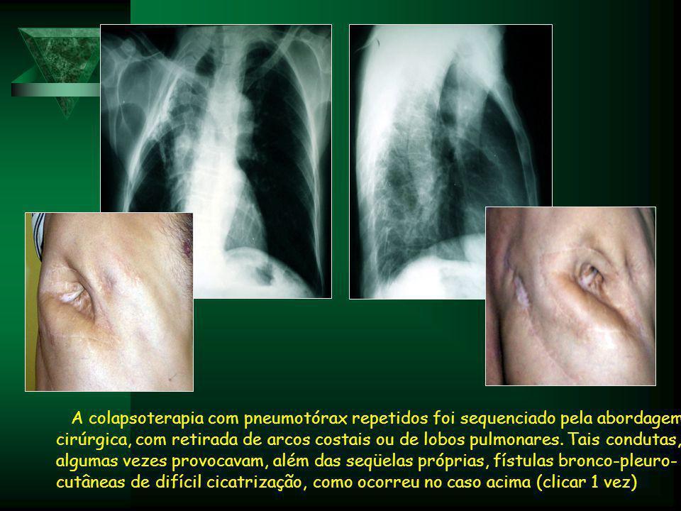 A colapsoterapia com pneumotórax repetidos foi sequenciado pela abordagem cirúrgica, com retirada de arcos costais ou de lobos pulmonares.