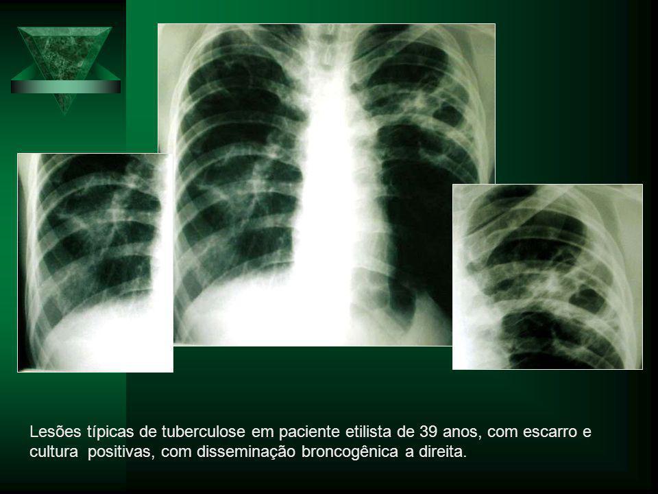 Lesões típicas de tuberculose em paciente etilista de 39 anos, com escarro e cultura positivas, com disseminação broncogênica a direita.