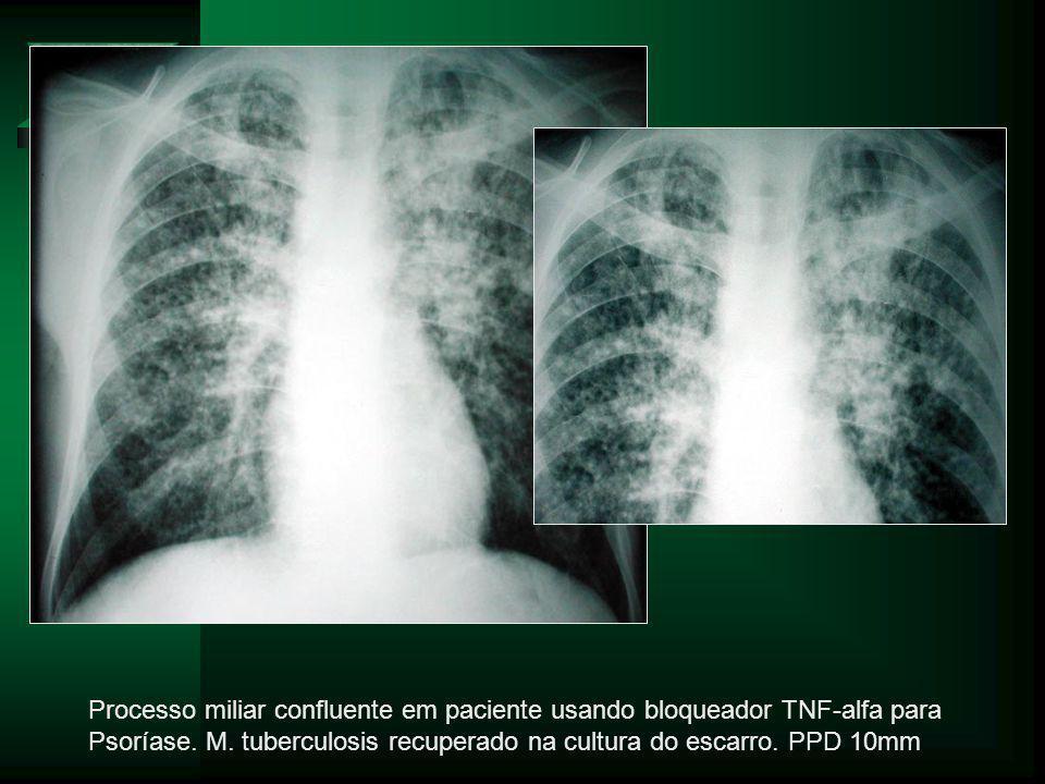 Processo miliar confluente em paciente usando bloqueador TNF-alfa para Psoríase.
