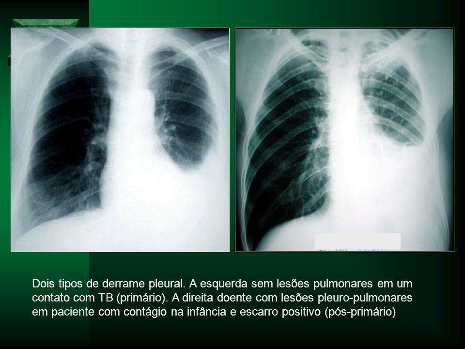 Dois tipos de derrame pleural.A esquerda sem lesões pulmonares em um contato com TB (primário).
