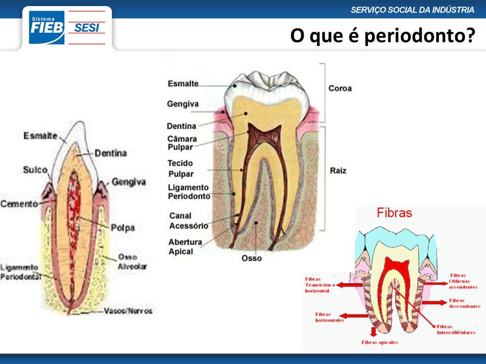 Periodontite:  É a inflamação no periodonto induzida por placa  É uma doença lenta que provoca a perda do osso  Popularmente conhecida como Piorréia  O hábito de fumar é um grande agravante.
