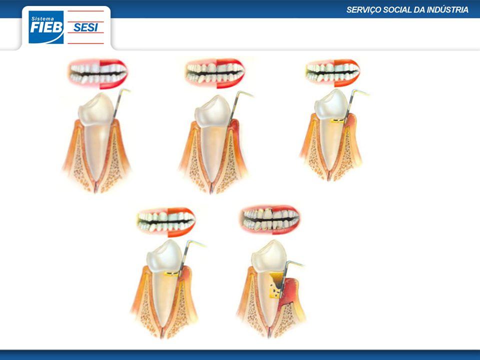 Sintomas da periodontite: •Mau hálito •Gengivas com aspecto de um vermelho vivo ou arroxeado •Gengivas com aspecto brilhante •Gengivas que sangram com facilidade •Gengivas sensíveis ao toque •Dentes moles •Gengivas inchadas •Dor ao mastigar •Espaços entre os dentes que antes não existiam