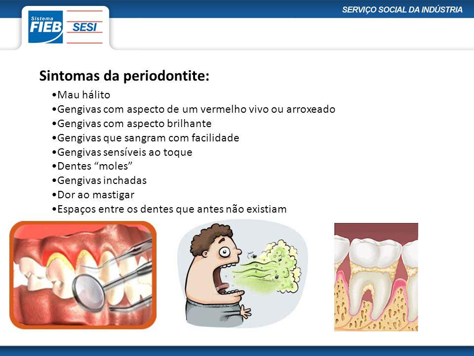 Periodontite X Doenças do coração •A inflamação no periodonto pode aumentar em 2 a 5 vezes o risco de infarto.
