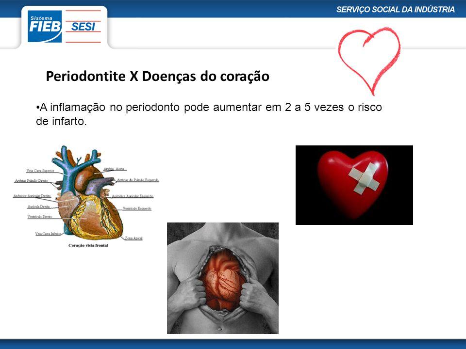 Aterosclerose (entupimento da veia) X Periodontite