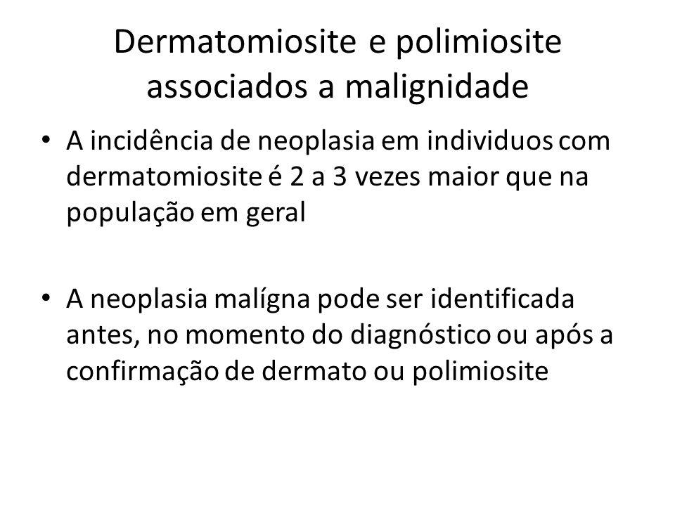 Dermatomiosite e polimiosite associados a malignidade • A incidência de neoplasia em individuos com dermatomiosite é 2 a 3 vezes maior que na população em geral • A neoplasia malígna pode ser identificada antes, no momento do diagnóstico ou após a confirmação de dermato ou polimiosite