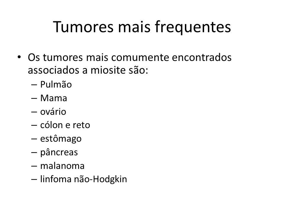 Tumores mais frequentes • Os tumores mais comumente encontrados associados a miosite são: – Pulmão – Mama – ovário – cólon e reto – estômago – pâncreas – malanoma – linfoma não-Hodgkin