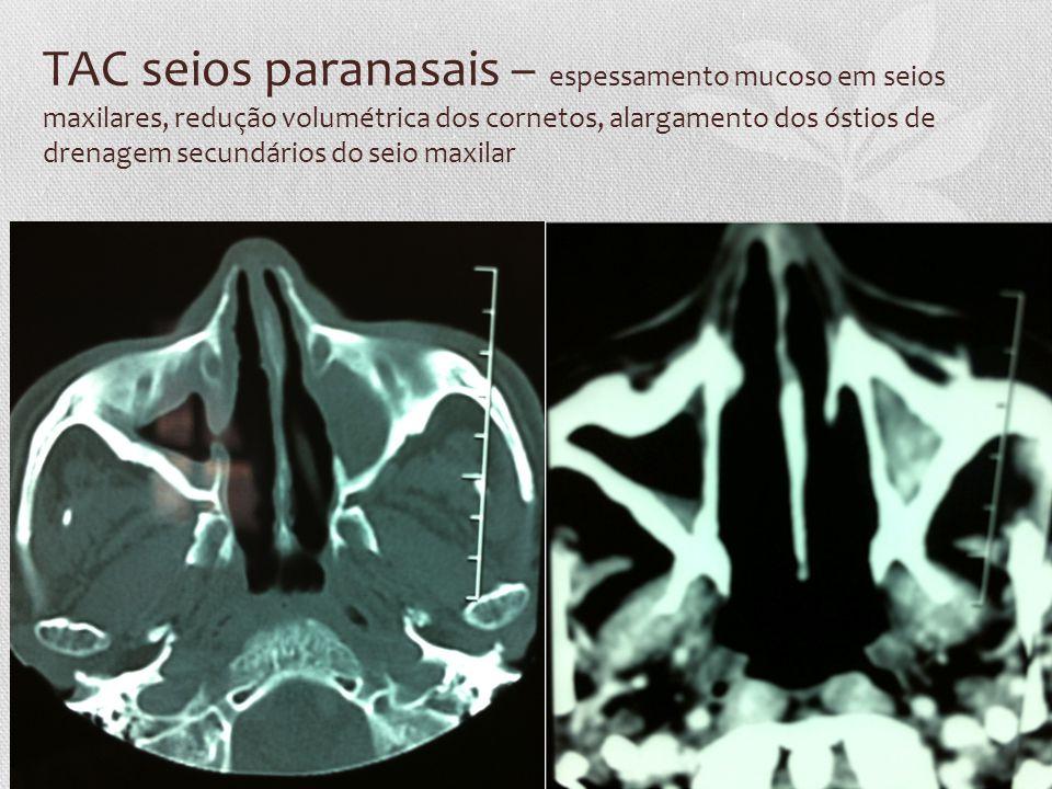 TAC seios paranasais – espessamento mucoso em seios maxilares, redução volumétrica dos cornetos, alargamento dos óstios de drenagem secundários do sei