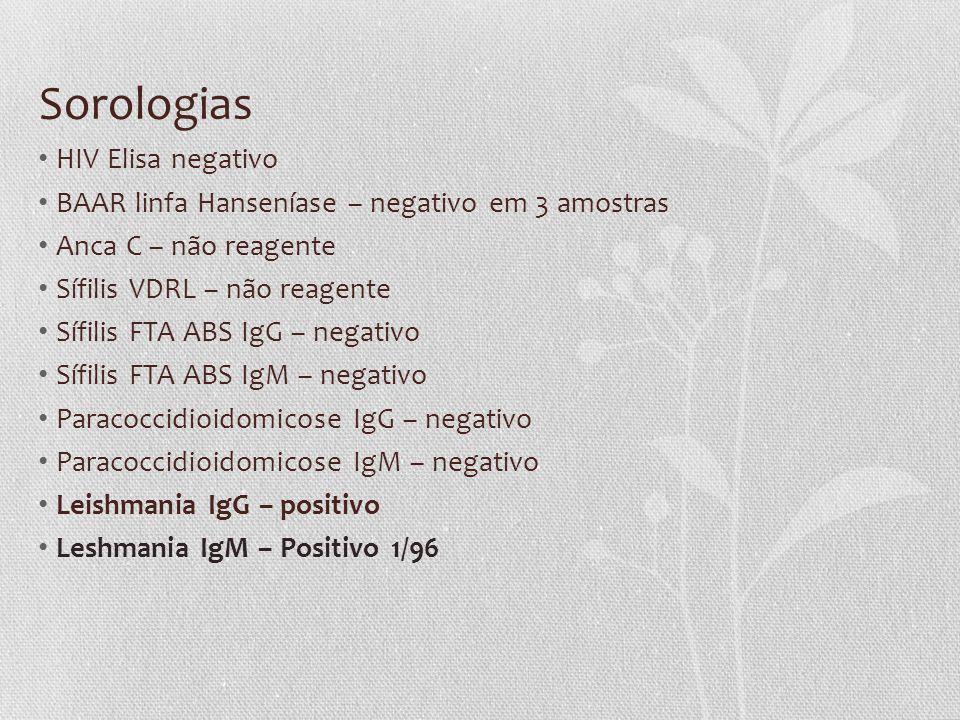 Sorologias • HIV Elisa negativo • BAAR linfa Hanseníase – negativo em 3 amostras • Anca C – não reagente • Sífilis VDRL – não reagente • Sífilis FTA A