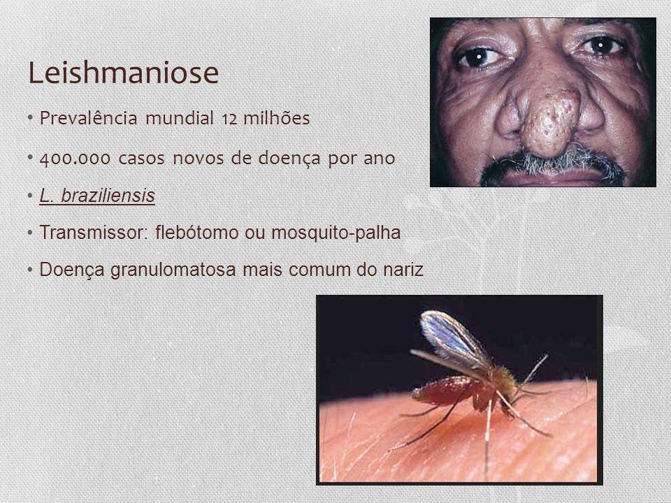 Leishmaniose • Prevalência mundial 12 milhões • 400.000 casos novos de doença por ano •L. braziliensis •Transmissor: flebótomo ou mosquito-palha •Doen
