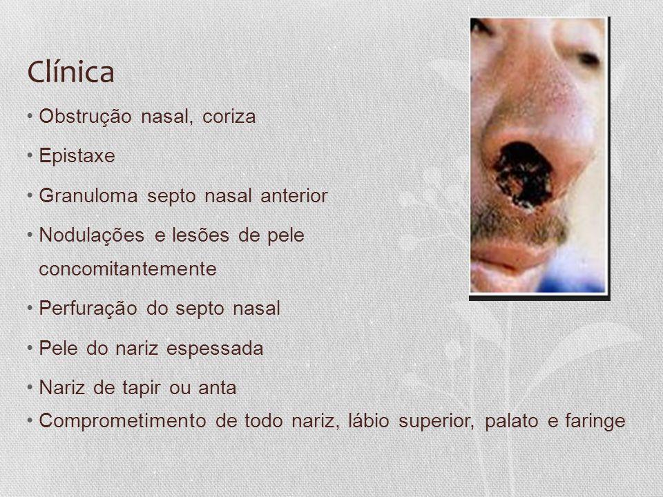 Clínica •Obstrução nasal, coriza •Epistaxe •Granuloma septo nasal anterior •Nodulações e lesões de pele concomitantemente •Perfuração do septo nasal •