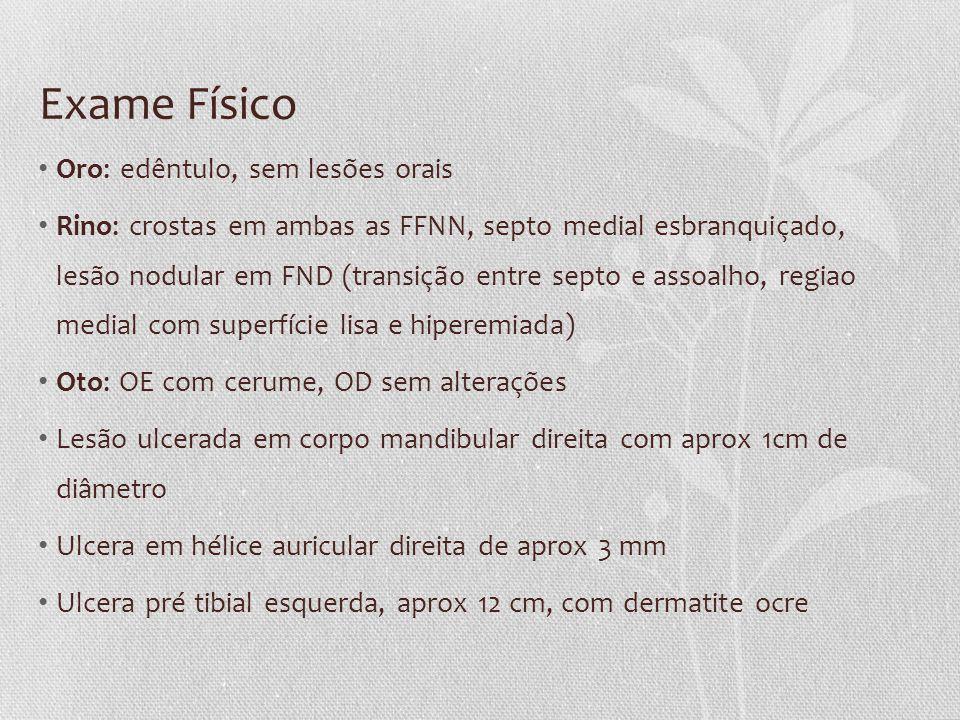 Exame Físico • Oro: edêntulo, sem lesões orais • Rino: crostas em ambas as FFNN, septo medial esbranquiçado, lesão nodular em FND (transição entre sep