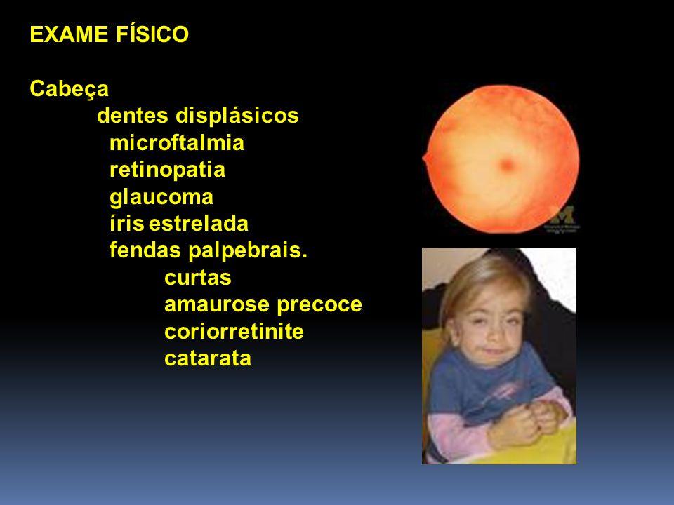 EXAME FÍSICO Cabeça dentes displásicos microftalmia retinopatia glaucoma íris estrelada fendas palpebrais.