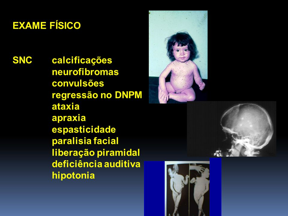 EXAME FÍSICO SNC calcificações neurofibromas convulsões regressão no DNPM ataxia apraxia espasticidade paralisia facial liberação piramidal deficiência auditiva hipotonia