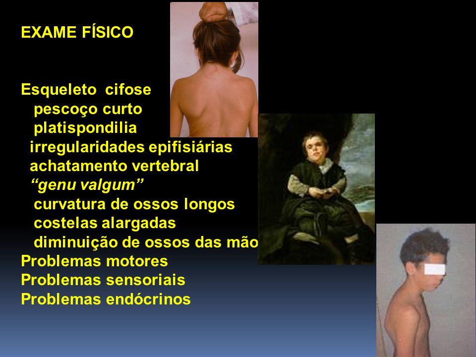 EXAME NEUROLÓGICO a) Exame do crânio: malformações, mensuração do PC diâmetros antero-posterior e biauricular.
