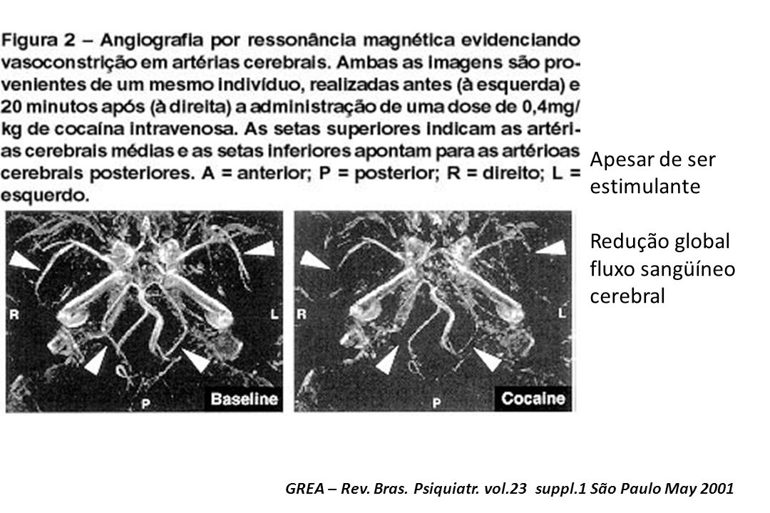 GREA – Rev. Bras. Psiquiatr. vol.23 suppl.1 São Paulo May 2001 Apesar de ser estimulante Redução global fluxo sangüíneo cerebral