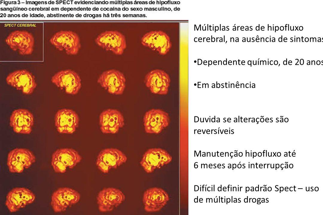 Múltiplas áreas de hipofluxo cerebral, na ausência de sintomas • Dependente químico, de 20 anos • Em abstinência Duvida se alterações são reversíveis