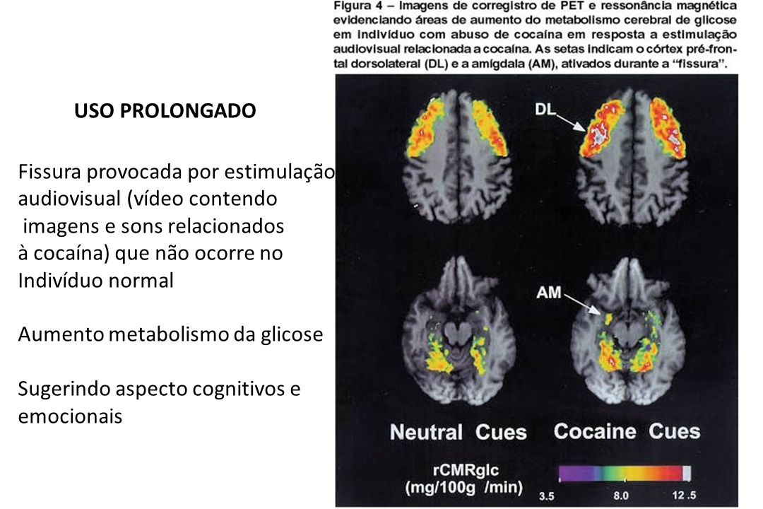 Fissura provocada por estimulação audiovisual (vídeo contendo imagens e sons relacionados à cocaína) que não ocorre no Indivíduo normal Aumento metabo