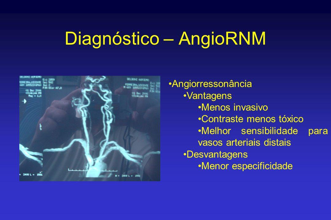 Diagnóstico – AngioRNM •Angiorressonância •Vantagens •Menos invasivo •Contraste menos tóxico •Melhor sensibilidade para vasos arteriais distais •Desvantagens •Menor especificidade