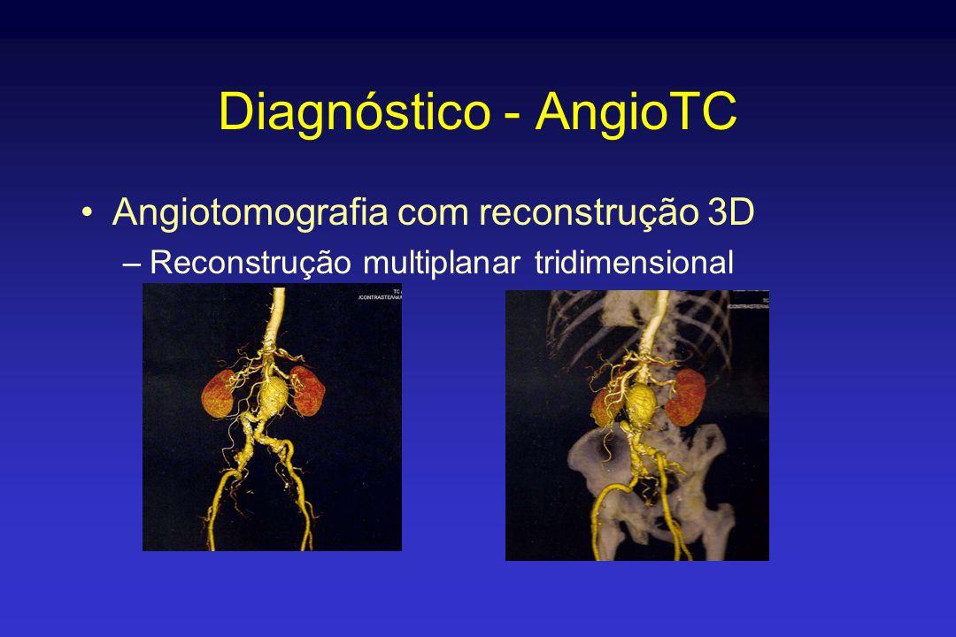 Diagnóstico - AngioTC •Angiotomografia com reconstrução 3D –Reconstrução multiplanar tridimensional
