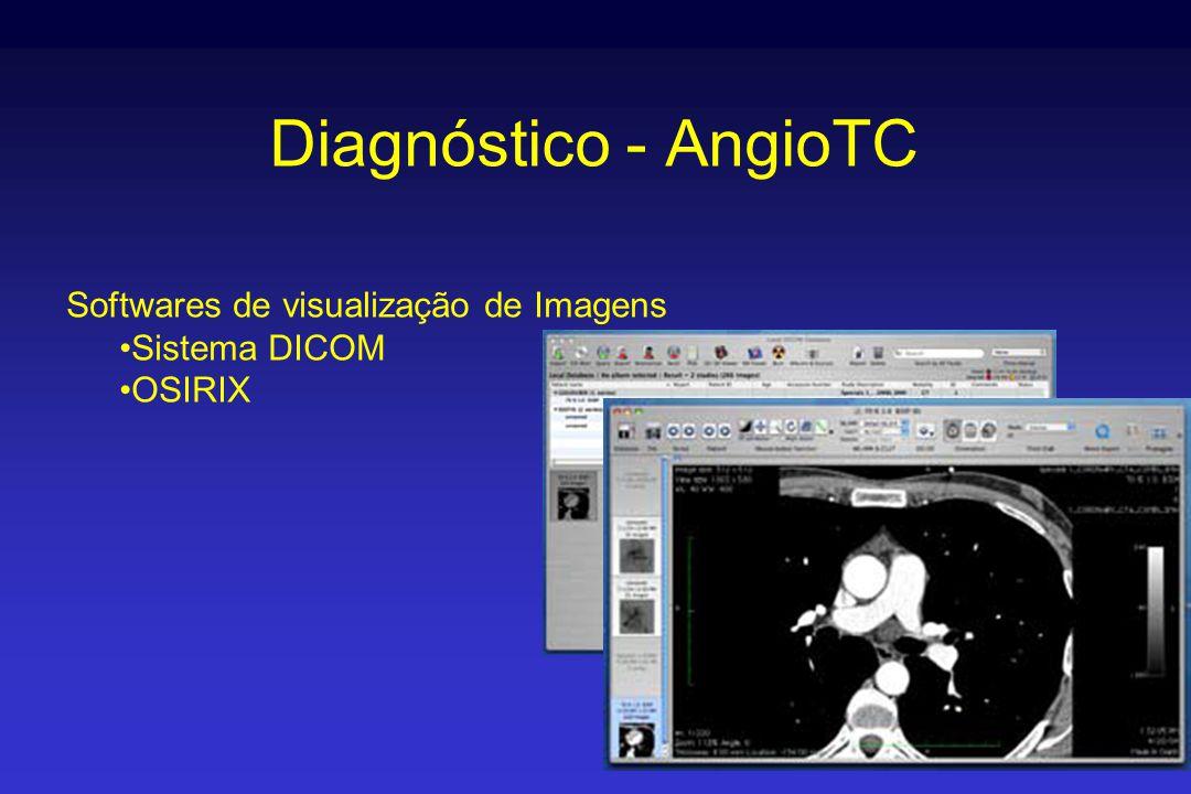 Diagnóstico - AngioTC Softwares de visualização de Imagens •Sistema DICOM •OSIRIX