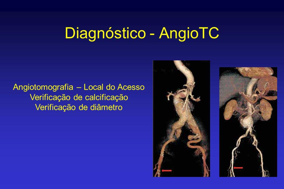 Diagnóstico - AngioTC Angiotomografia – Local do Acesso Verificação de calcificação Verificação de diâmetro