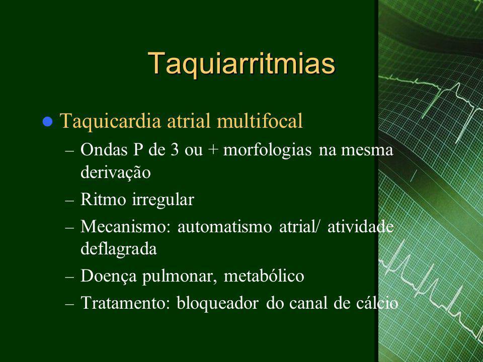 Taquiarritmias  Taquicardia atrial multifocal – Ondas P de 3 ou + morfologias na mesma derivação – Ritmo irregular – Mecanismo: automatismo atrial/ atividade deflagrada – Doença pulmonar, metabólico – Tratamento: bloqueador do canal de cálcio