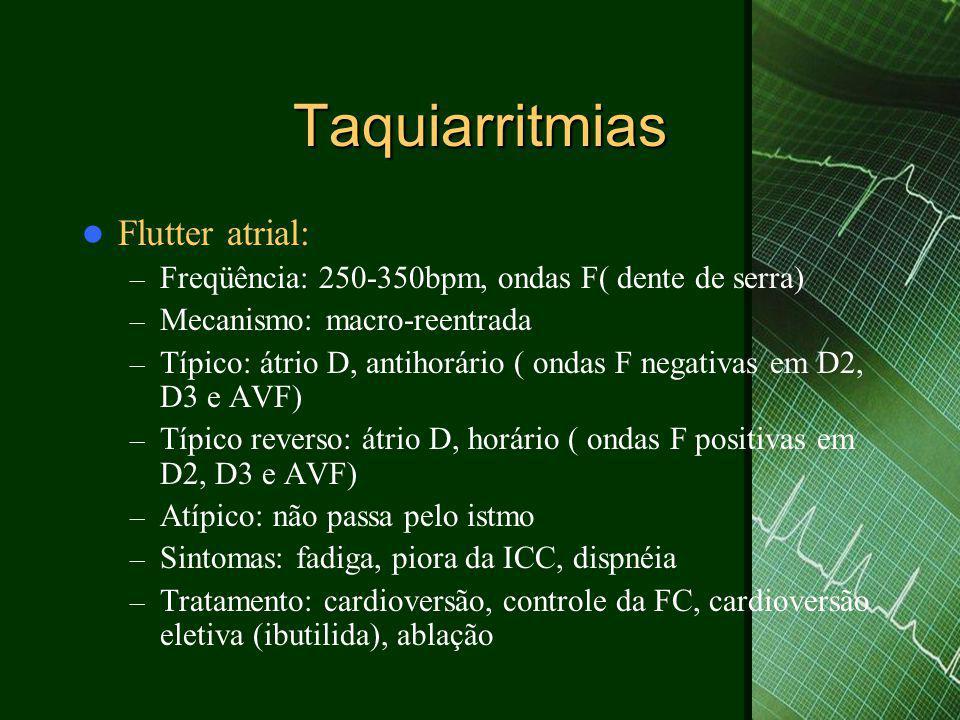 Taquiarritmias  Flutter atrial: – Freqüência: 250-350bpm, ondas F( dente de serra) – Mecanismo: macro-reentrada – Típico: átrio D, antihorário ( onda