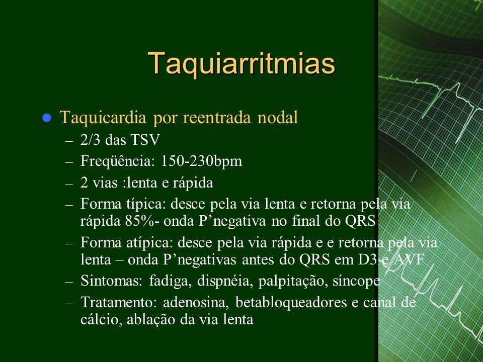 Taquiarritmias  Taquicardia por reentrada nodal – 2/3 das TSV – Freqüência: 150-230bpm – 2 vias :lenta e rápida – Forma típica: desce pela via lenta