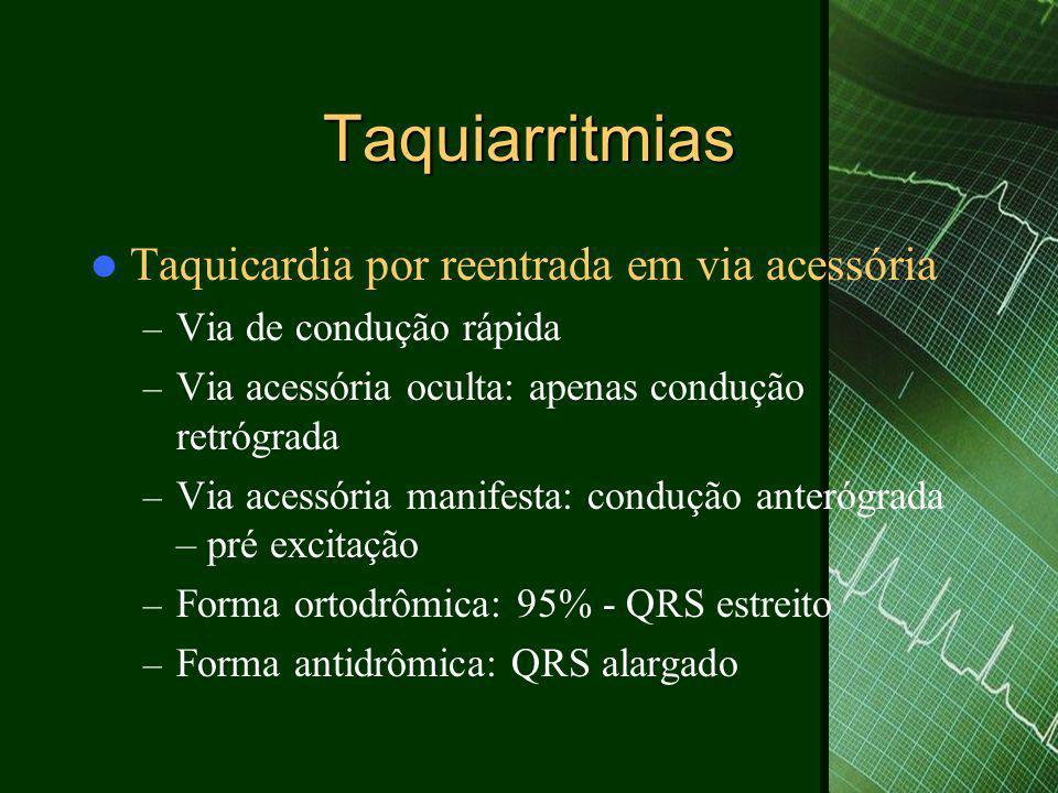 Taquiarritmias  Taquicardia por reentrada em via acessória – Via de condução rápida – Via acessória oculta: apenas condução retrógrada – Via acessóri