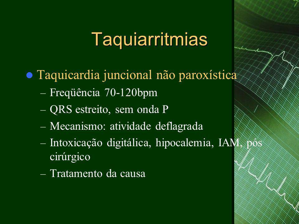 Taquiarritmias  Taquicardia juncional não paroxística – Freqüência 70-120bpm – QRS estreito, sem onda P – Mecanismo: atividade deflagrada – Intoxicaç